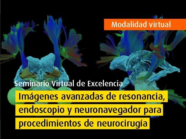 Curso virtual - Imágenes avanzadas de resonancia, endoscopio y neuronavegador para procedimientos de neurocirugía